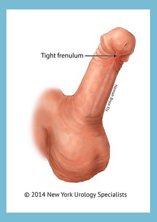 Penis frenectomy hamilton