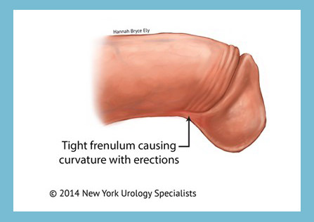 Penile frenulectomy london