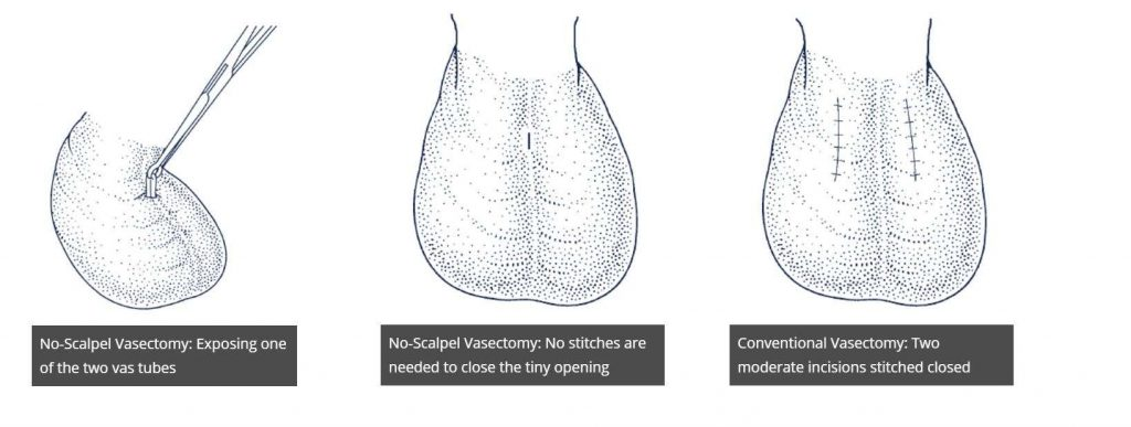 How no scalpel vasectomy works at Pollock Clinics