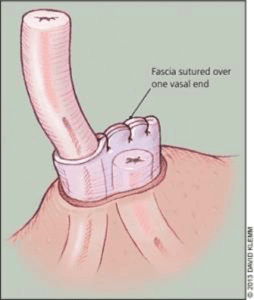 fascial interposition with vasectomy diagram