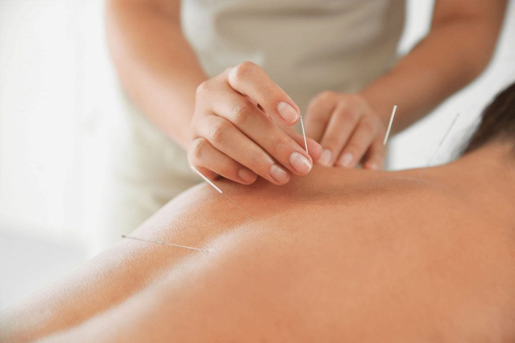 acupuncture clinic with full tcm in toronto