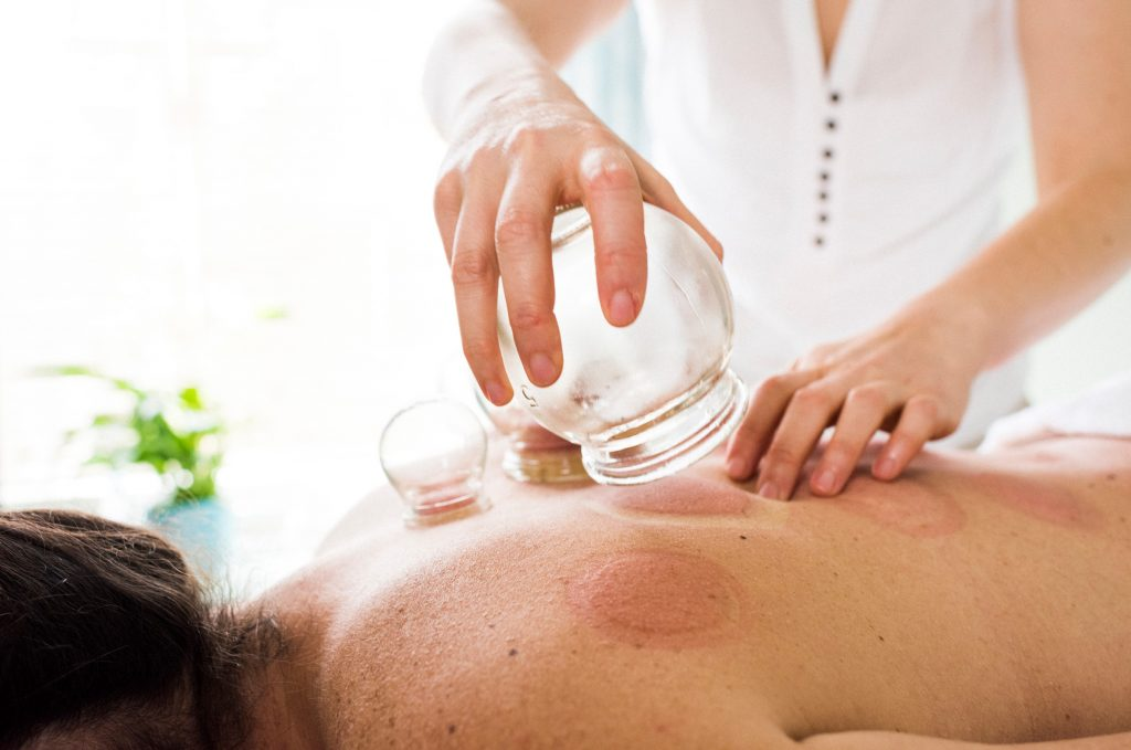 wet cupping vs dry cupping tcm treatment